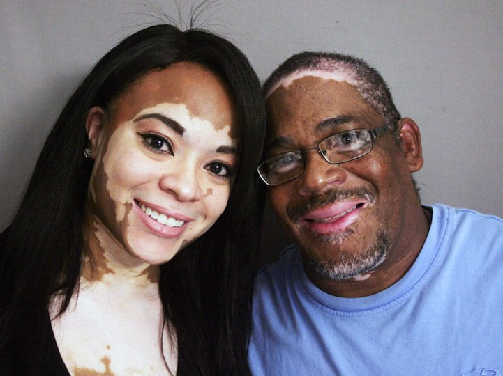 On a visit to StoryCorps, Cheri Lindsay, 25, and Phillip Lindsay, 52, discussed a rare skin condition they share, and how they both have coped.